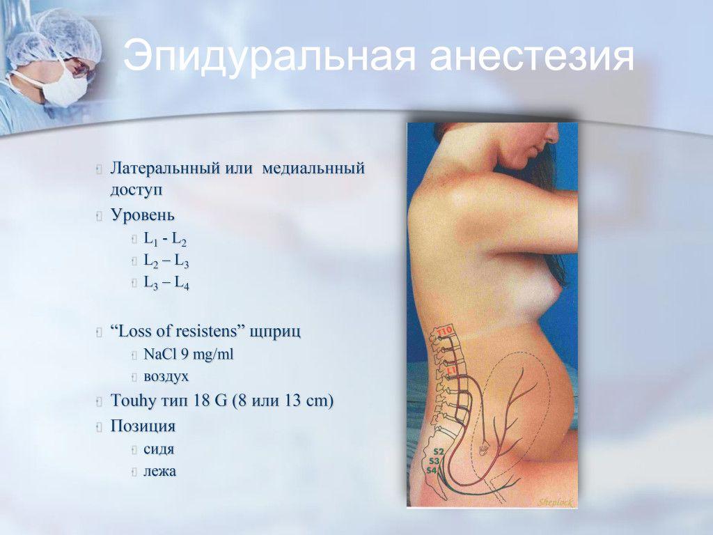 pelanis_Moskva_4_2-14